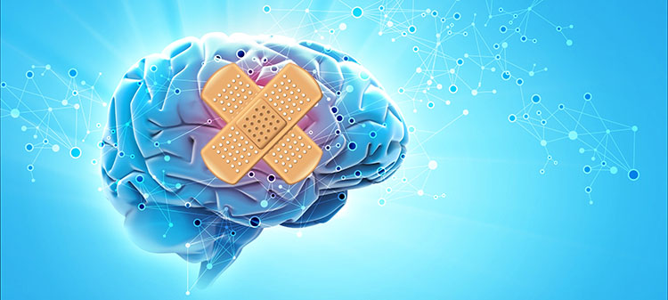 The Brain That Heals Itself